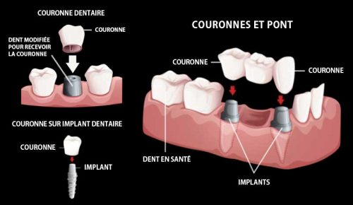 7 couronnes-pont-implants